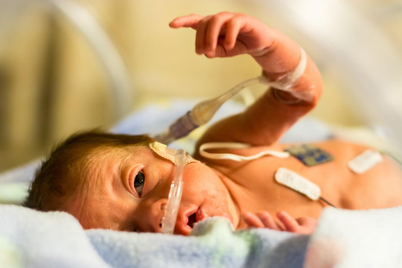 Injured Baby At Hospital