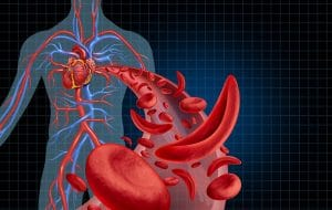 Sickle Cell Disease, Cystic Fibrosis & Disparities in Federal Funding